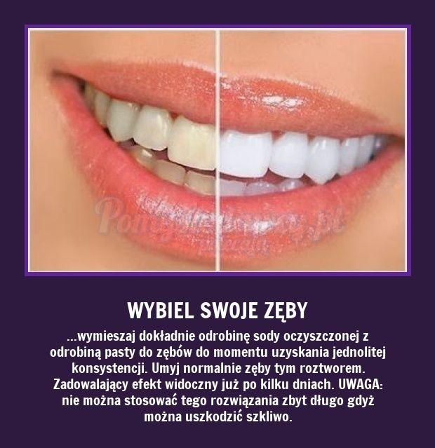 Wybielanie zębów - sposoby. http://womanmax.pl/wybielanie-zebow-sposoby/