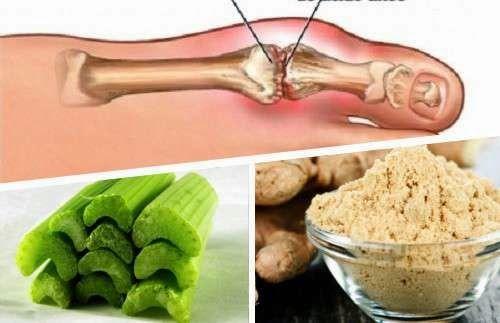Increible Remedio naturales con jengibre y apio para eliminar los cristales de ácido úrico..!! ~ Lo Que No Sabemos