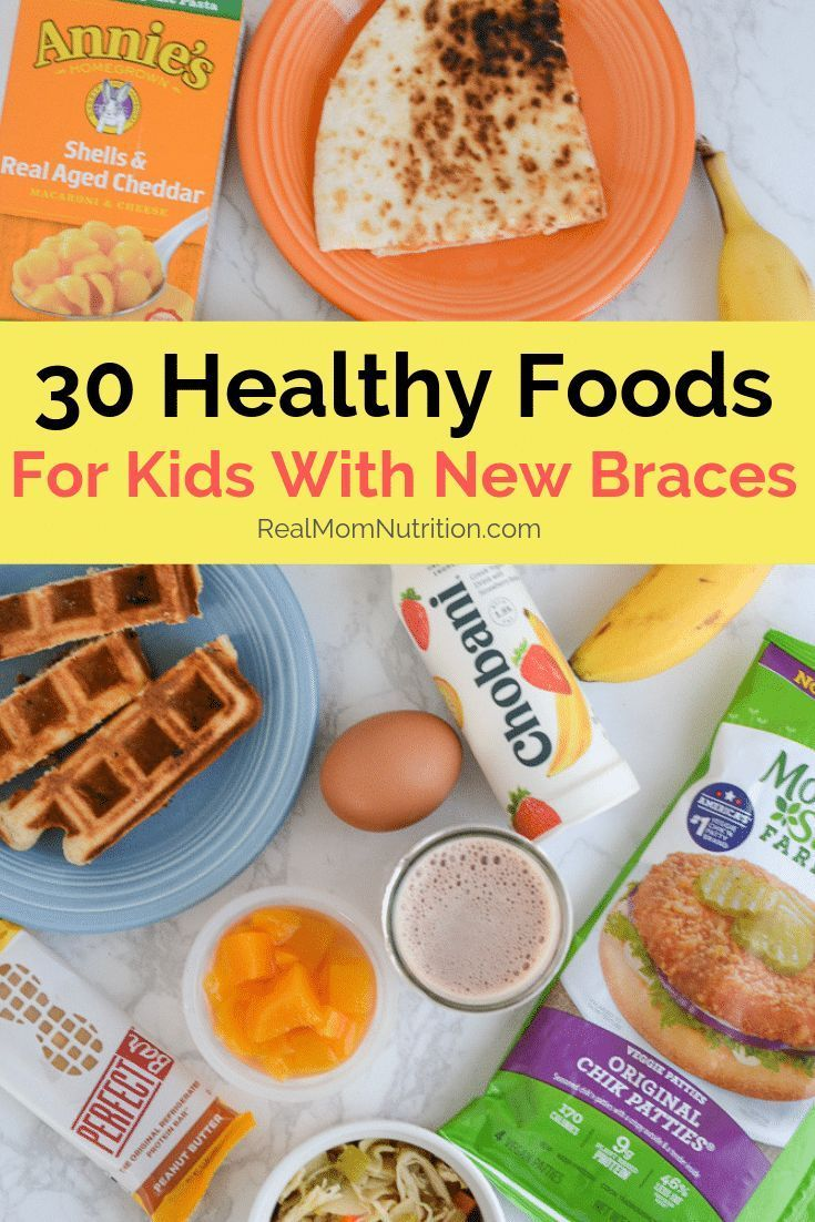 New Braces? Here Are 30 Healthy Foods That Are Easy To Eat