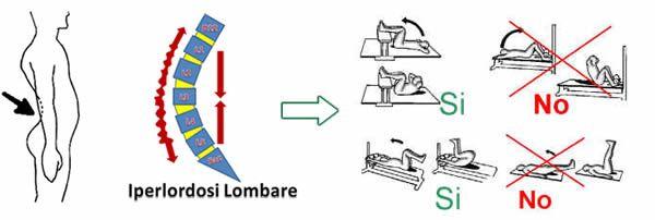 #Iperlordosi lombare: gli esercizi corretti e quelli da evitare
