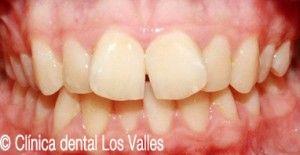 ¿Sabes que la ortodoncia Damon te ayuda a solucionar tus problemas de mordida?