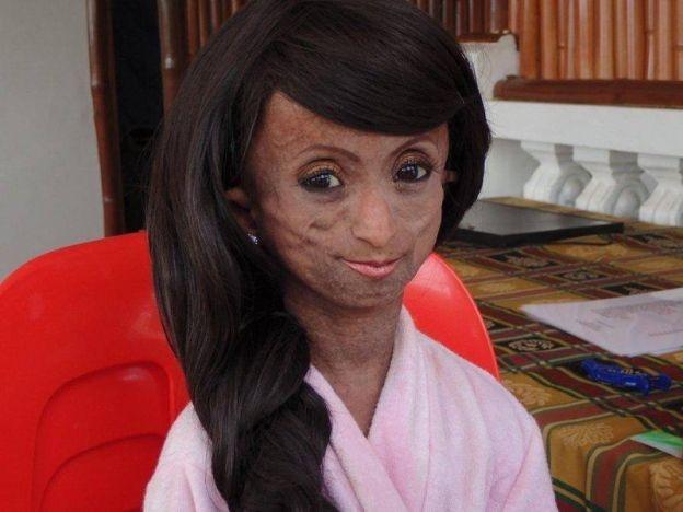 Gadis tertua di Asia Ana Rocella meninggal dunia di usia 19 tahun   Remaja digelar gadis tertua di Asia meninggal dunia pada umur 19 tahun minggu lalu.  Ana Rocella mengidap penyakit ganjil sindrom Hutchinson-Gilford yang menyebabkan badannya kelihatan berumur lapan kali lebih cepat daripada biasa.  Gadis tertua di Asia Ana Rocella meninggal dunia di usia 19 tahun  Menurut badan amal yang berkempen mengenai penyakit genetik berpengkalan di Amerika Syarikat Progeria Research Foundation…