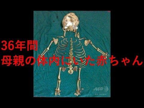 【インド仰天ニュース】36年間母親の胎内に居た白骨化した子供を摘出