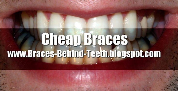 How to Save Big Money on Cheap Braces! http://braces-behind-teeth.blogspot.com/2014/06/Cheap-Braces.html