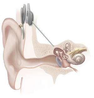 the benefits and drawbacks of getting cochlear implants for those with a hearing impairment The following is a summary of the advantages of eas combines a cochlear implant with hearing when children with a profound hearing impairment are.