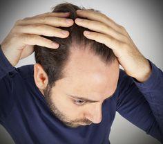 Research has found that male pattern baldness is associated with male sex hormones called androgens.  #bald  #baldness  #baldnesscure  #baldnesstreatment  #hair  #hairloss  #hairfall  #regrow  #shedding  #argan  #arganoil  #arganrain  #arganrainshampoo  # http://www.hairgrowinggenius.com/