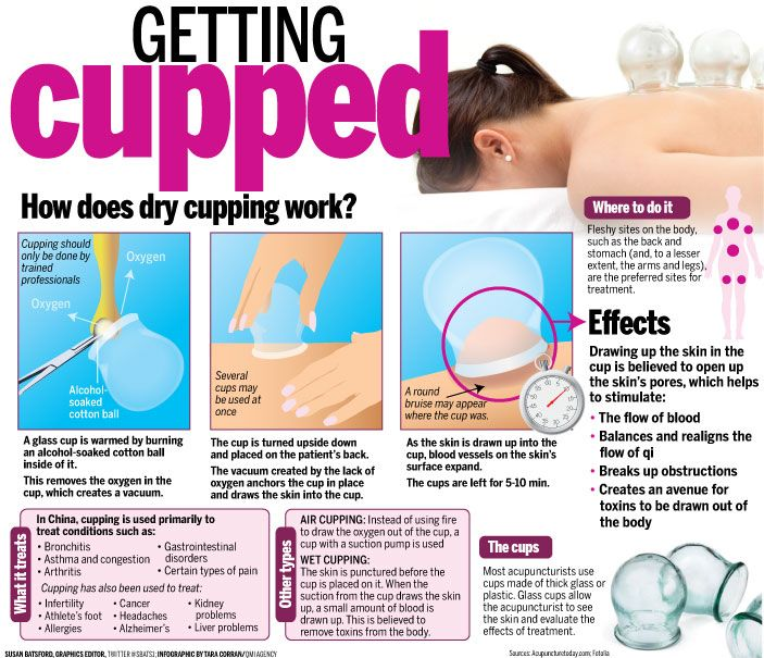 #Cupping Massage Los Angeles