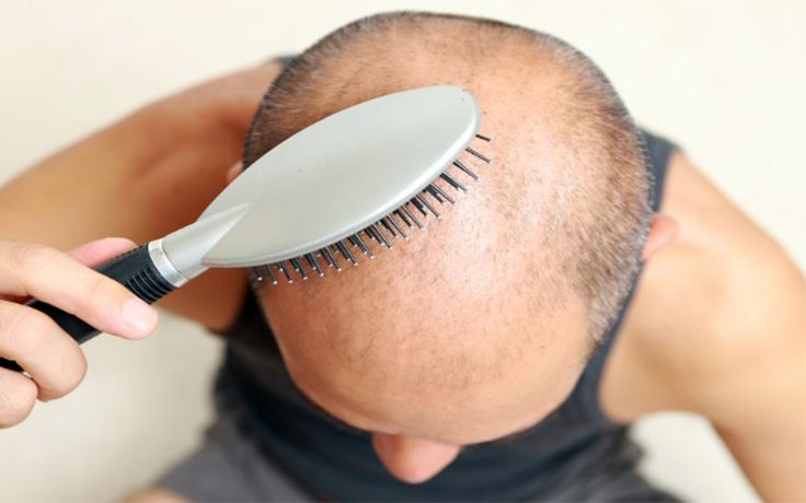 Grow Lost Hair Easily With FUE Hair Transplant Method - http://www.hairtransplantturkey.co/wp-content/uploads/2015/06/fue-hair-transplant-method2.jpg