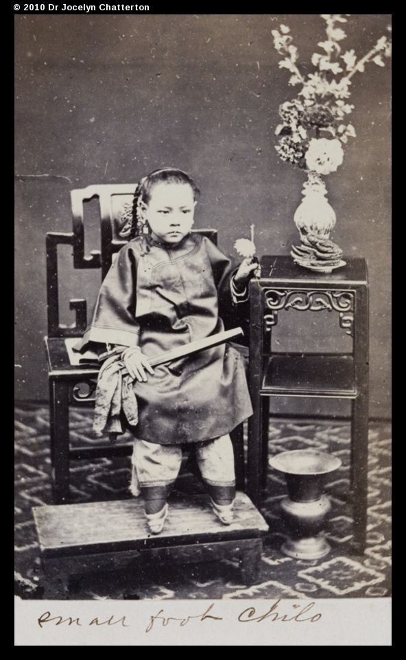 """""""Girl with bound feet 1870-1890. The feet would then regularly be unbound, washed and kneaded, with additional pain often caused by beating the sole of the foot to keep the bones broken. The feet were then rebound – ever more tightly each time. Whenever the binding session was over, the girl was immediately forced to walk on her feet to crush them further. None of this was carried out with any anesthetic."""""""