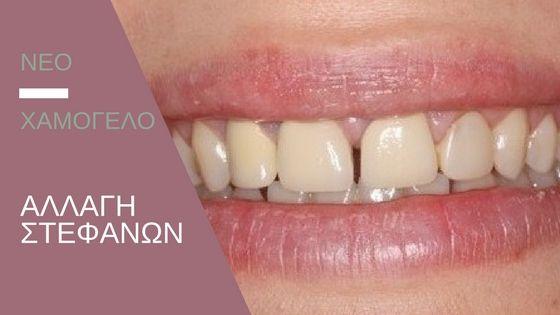 Αντικατάσταση παλαιών στεφανών για βελτίωση της αισθητικής των δοντιών