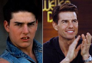 Top 10 Celebrity Cosmetic Dental Surgery Before and After Photos of Tom Cruise
