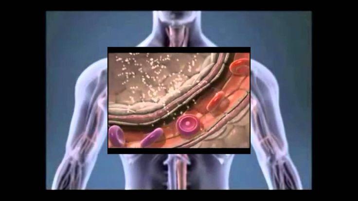 Rote Blutkörperchen und Eisenmangel - Anämie