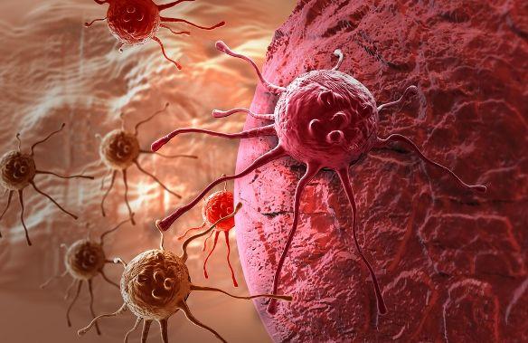 A daganatos betegek számára veszélyes lehet néhány élelmiszer fogyasztása, ugyanis erősíthetik a daganatos sejtek terjedését, növekedését.  Lássuk melyek ezek...