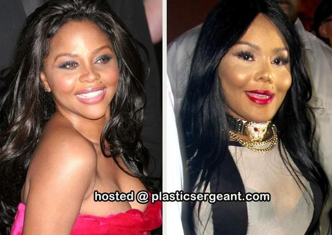 Lil Kim , Cosmetic Surgery