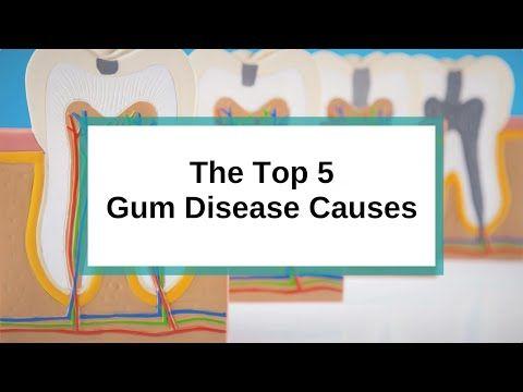 The Top 5 Gum Disease Causes www.q1dental.com.au