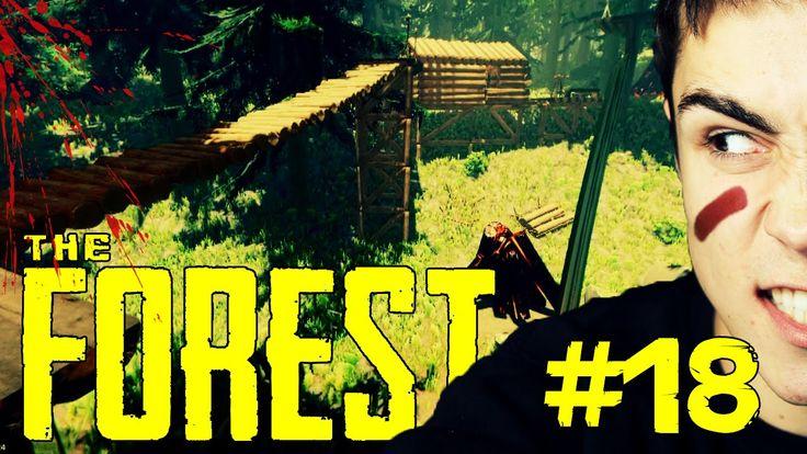 KOMPLEKS PLATFORM! - The Forest #18
