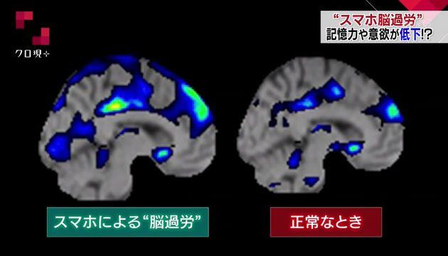 脳 スマホ