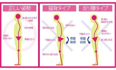 骨盤の前傾の原因と前傾を改善・矯正するストレッチや股関節周辺の筋トレ   ダイエットなら美wise!