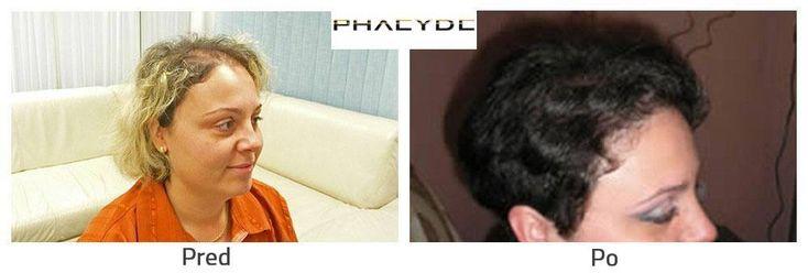 Transplantácia vlasov pred po následok
