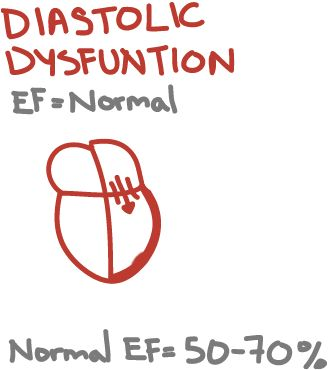 Diastolic Heart Failure = Failure to relax and fill normally, has a normal ejection fraction  Causes: Chronic hypertension, hypertrophic cardiomyopathy, aortic stenosis, coronary disease