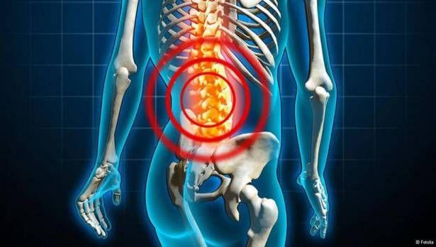 الحالات التي تستوجب مراجعة الطبيب عند الإصابة بألم أسفل الظهر Health Education Health Advice Health Diet