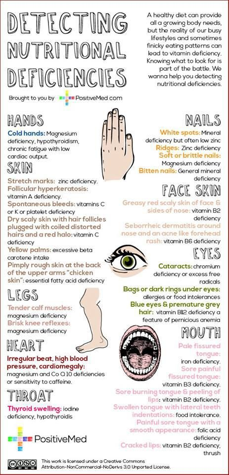 How to detect nutritional deficiencies - simple tests you can do at home.