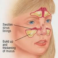 Sinus infections are an inflammation of the sinuses and can be caused by viral, fungal or bacterial infections. There are two types of sinusitis. The first is acute sinusitis caused by increasing bacteria in the sinus. It can only last for not more than four weeks. And second type is Chronic sinusitis caused by bacteria and fungus. For this type, the swelling and inflammation of the sinus can last for three months. It creates pain in the nasal passage.