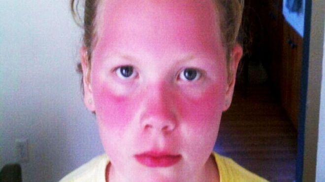 baby sunburn