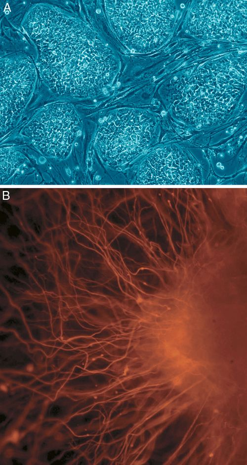 Human embryonic stem cells  A: Stem cell colonies that are not yet differentiated.  B: Nerve cells, an example of a cell type after differentiation.
