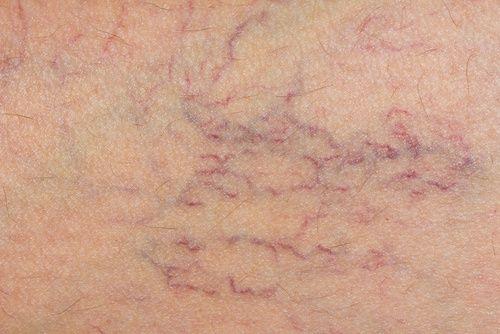 Notícias: Tratamento natural para prevenir as varizes