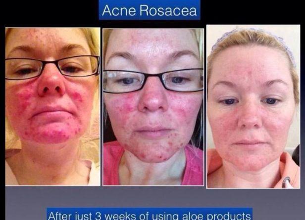allergic rash from aloe vera 17 best images about aloe vera for skin on pinterest. Black Bedroom Furniture Sets. Home Design Ideas