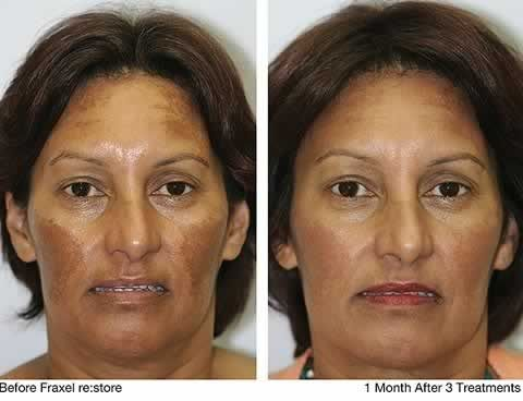 Dark Skin Pigmentation On Face All About Hyperpigmentation
