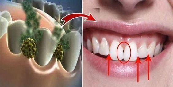 Éliminez la mauvaise haleine en seulement 5 minutes! Remède qui va éliminer toutes les bactéries qui causent la mauvaise haleine