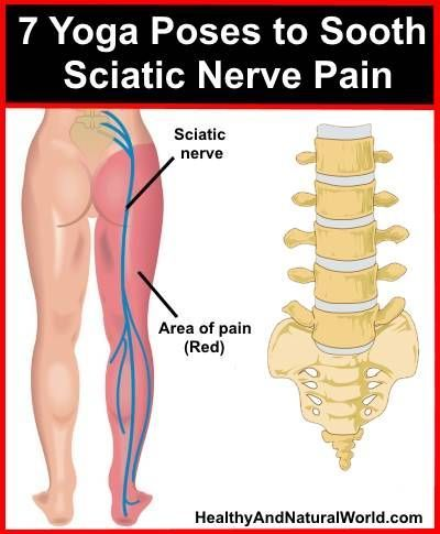 7 Yoga Poses to Sooth Sciatic Nerve Pain, be sure to exercise with care.: