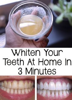 Whiten your teeth in 5 minutes