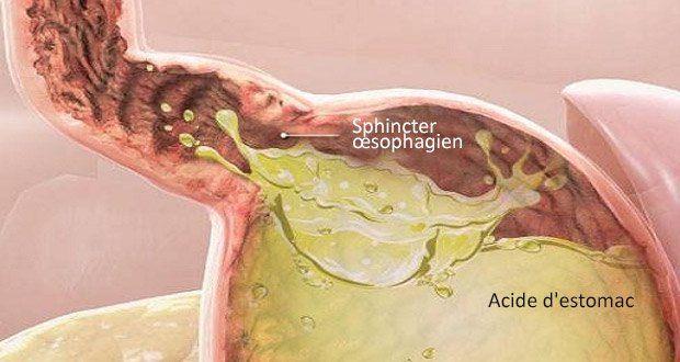 Ce cancer se développe très rapidement et la plupart des gens pensent qu'il s'agit juste de reflux acides !