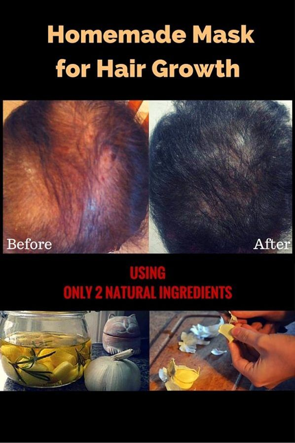 Simple Homemade Mask For Hair Growth HAIR LOSS  The eternal problem of women and men Although the GARLIC is usually avoided by people because of its smell you should know that it is rich in amino acids minerals vitamins and trace elements and because of this it is not good only for consumption but also for masks.