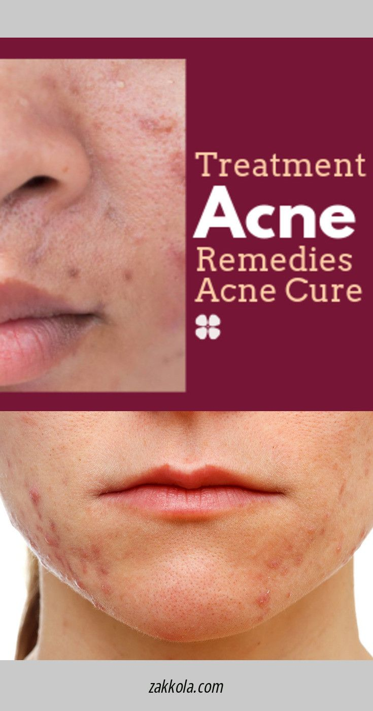 Home Remedies to Remove Dark Spots Completely �…