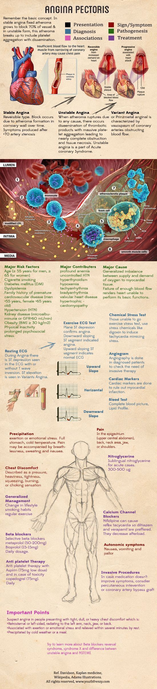 angina pectoris basic concept, causes, diagnosis, management and prognosis illustration