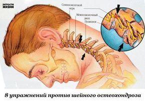 Восемь упражнений против шейного остеохондроза 1. Подбородок опустите к шее. Поверните голову сначала 5 раз вправо, а затем 5 раз влево.  2. Чуть-чуть приподнимите подбородок. Опять поверните голову вправо 5 раз, потом влево 5 раз.  3. Наклоните голову вправо, пытаясь достать ухом плечо — 5 раз, затем влево 5 раз.  4. Голова прямо. Преодолевая сопротивление напряженных мышц шеи, прижать подбородок к яремной ямке. Макушка головы при этом тянется вверх.  5. Надавите лбом на ладонь и напрягите…