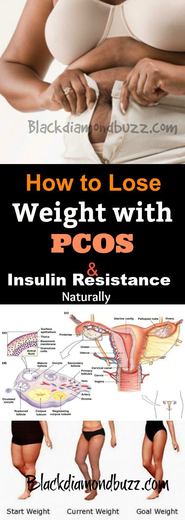 Are stuffering from PCOS (polycystic ovary syndrome) and you want to loss some weights? Then here are safe  ways on how to lose weight with PCOS and insulin resistance naturally at home.Included here are exercises and diets for PCOS you can try .