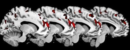 Study finds psychopaths have distinct brain structure