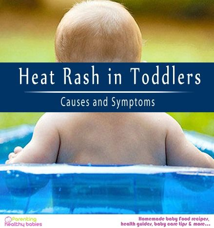 Heat rash appears like tiny pimples or dots. Generally, heat rash in toddlers occurs in areas like neck, head, and shoulders.