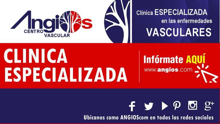 Nos especializamos en las enfermedades vasculares: Varices, Pie Diabetico, Ulcera venosa (varicosa), Trombosis, Linfedema, entre otras