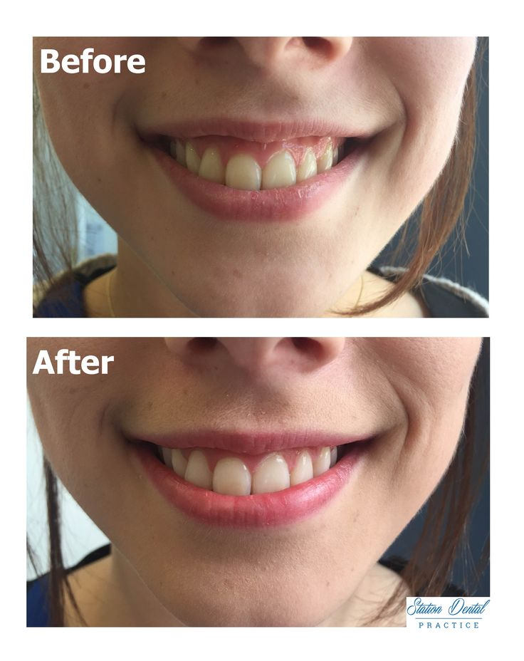 Before and after at home whitening treatment. Our client was extremely happy with her result.