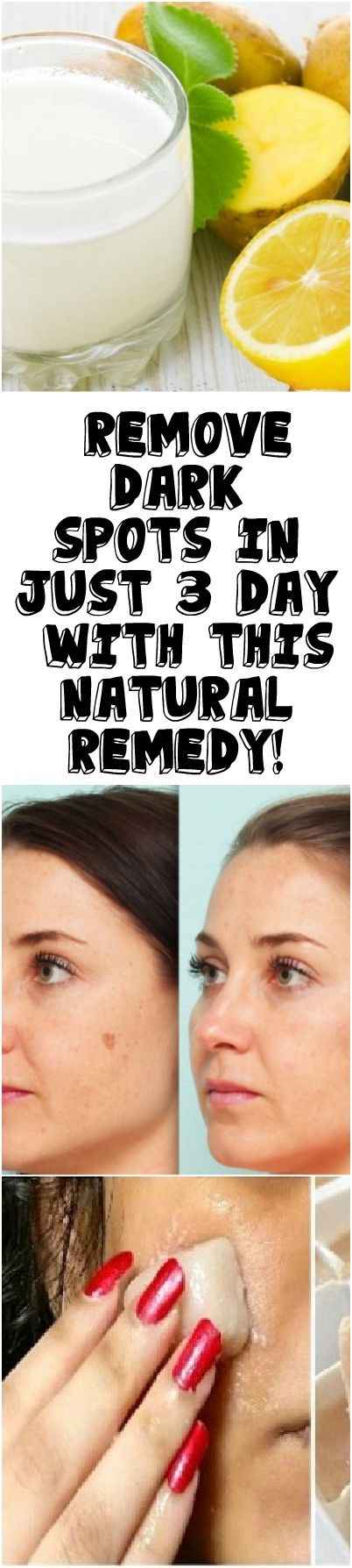 REMOVE DARK SPOTS IN JUST 3 DAY WITH THIS NATURAL REMEDY!
