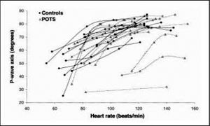 Relationship between P-wave axis and heart rate in individual patients with postural tachycardia syndrome (POTS) and in controls.