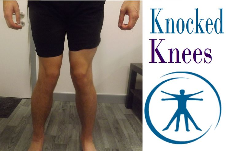 How To Fix Knocked Knees (Genu Valgum) With Correction Exercises and stretches
