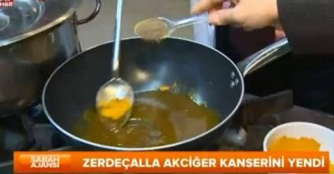 Zerdeçal İle Akciğer Kanserini Yendi! Kanseri Zerdeçal İle Yenen Türk Doktor!