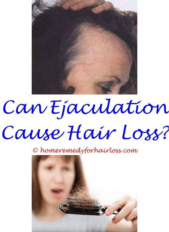 11 best Hair Loss 11 images on Pinterest